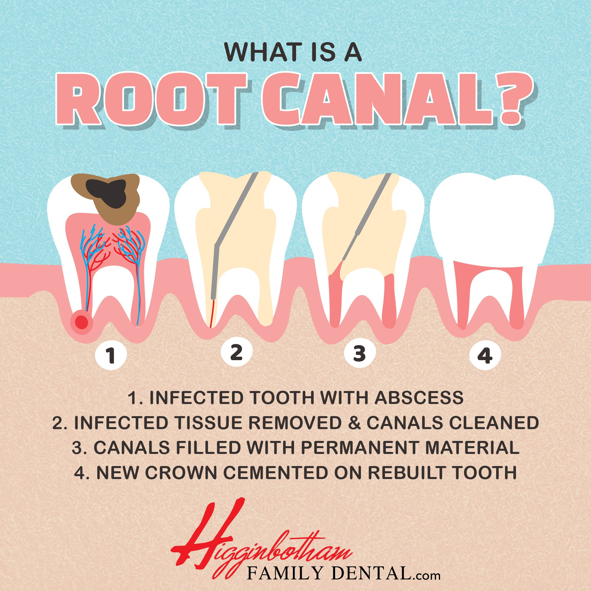 Root Canals Memphis